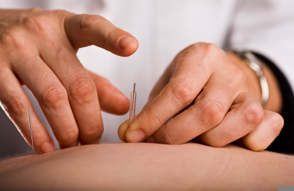 Acupuncture Sydney | Chinese Medicine Sydney